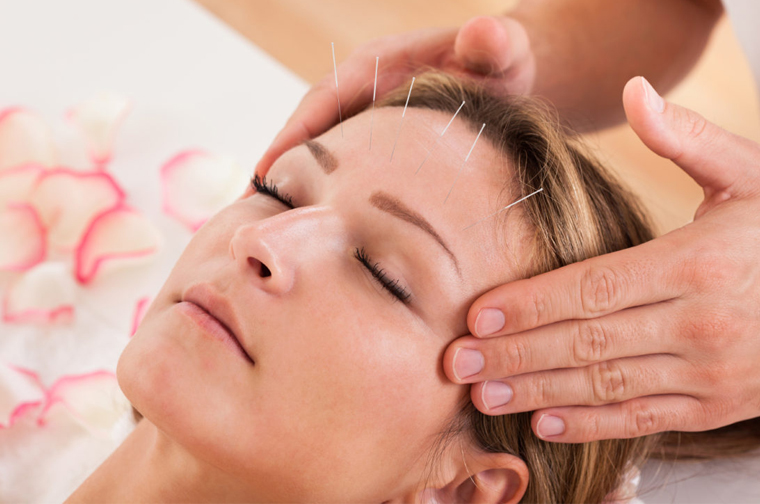 Acupuncture Increases the Success Rate of IVF